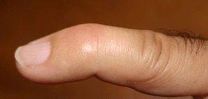 mallet finger 2